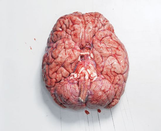 Preparing a fresh brain specimen for analysis