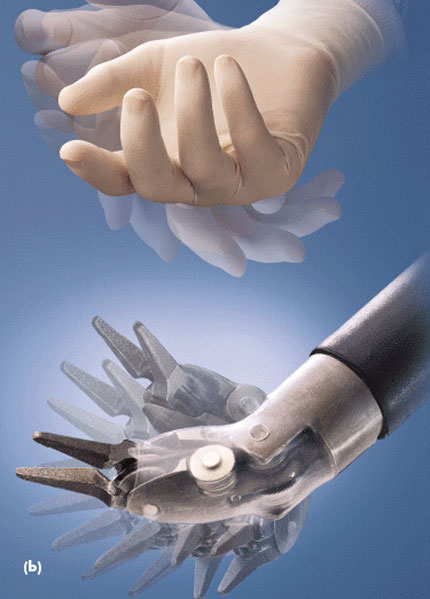 Intuitive Surgical da Vinci robotic surgical system'a surgical arms and spincers emulate the natural movement of your hand
