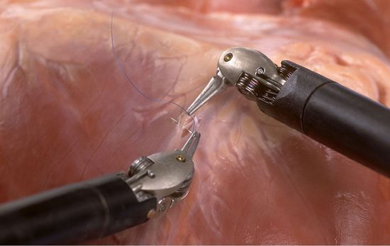 Intuitive Surgical da Vinci robotic surgical system'a surgical arms applying suchures
