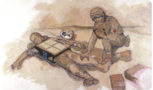 Tribogenics portable x-ray technology depiction used in the field by military medical personnel for the the real-time diagnosis of wounds and fractures