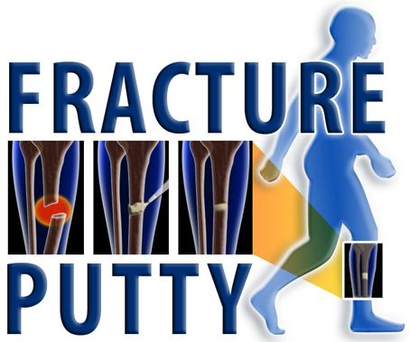 Fracture Putty