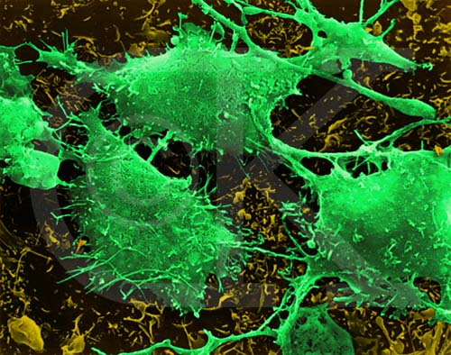 Brain cancer cells