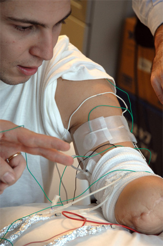 It follows up research from 2009 (we believe, seen here) in which a patient was able to feel pin pricks in a tethered robotic hand. He could also wiggle its fingers